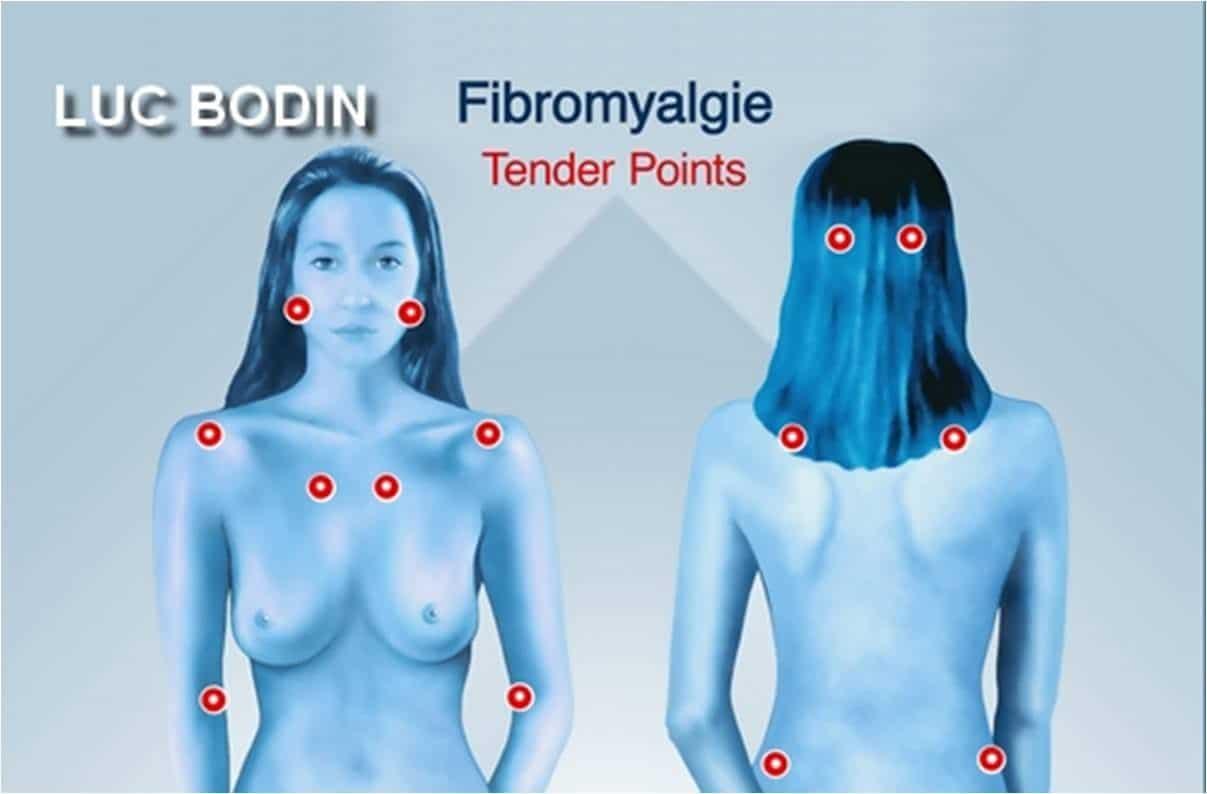 Fibromyalgie : qu'est-ce que c'est ?
